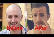 How to Deal with Scalp Itch after a Hair Transplant Image