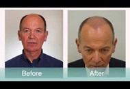 Body Hair Transplant in Turkey Image