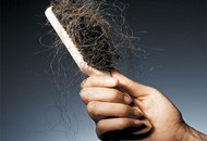 Hair Shedding after a Hair Transplant in Turkey image