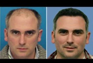 Results after a Hair Transplant in Turkey Image