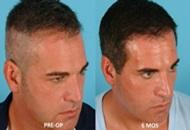 Repair Hair Transplant in Turkey Image