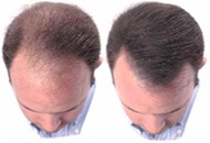 NeoGraft for Hair Transplant in Turkey Image