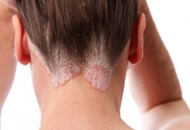 Scalp Psoriasis: Symptoms and Treatment Image
