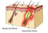 Folliculitis: Causes and Treatment Image