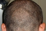 Hair Loss Treatments in Turkey Image