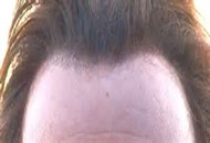 Is It Possible To Create A New Hairline By Using Hair
