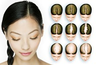 Hair Transplant for Women in Turkey Image